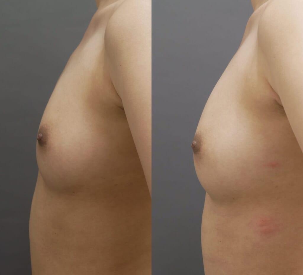 コンデンスリッチ豊胸 術後2ヶ月