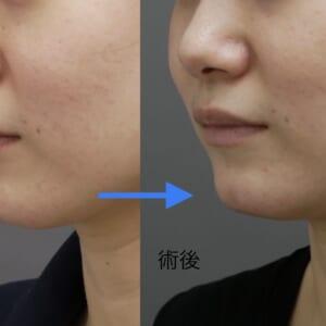 割れ顎の治療経過 mCRF 術後1.5ヶ月