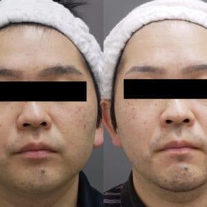 ベイザー頬顎下(男性) 術後1.5ヶ月
