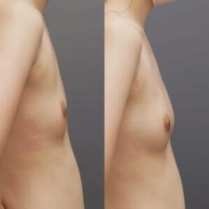 コンデンスリッチ豊胸 術後1ヶ月