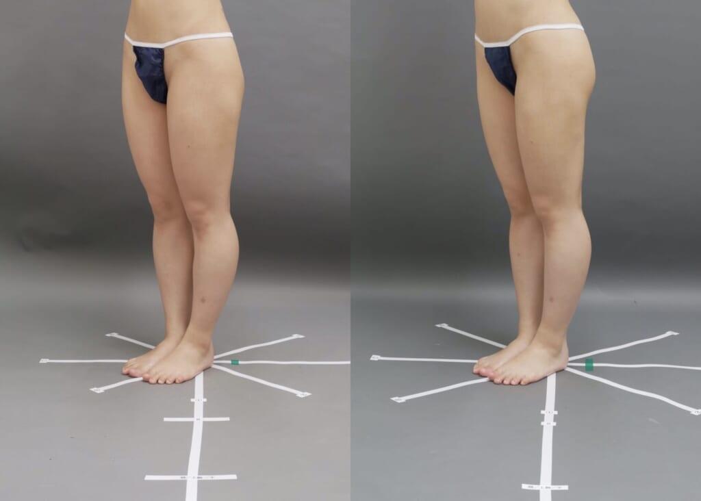 ベイザー大腿全周脂肪吸引 術後術後2ヶ月
