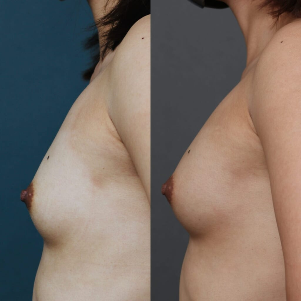 Bebra +エクソソーム豊胸 術後1ヶ月