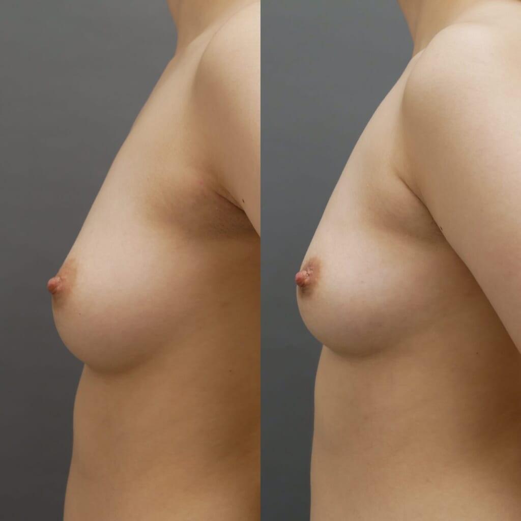 乳房縮小(ベイザー胸部脂肪吸引)術後2ヶ月