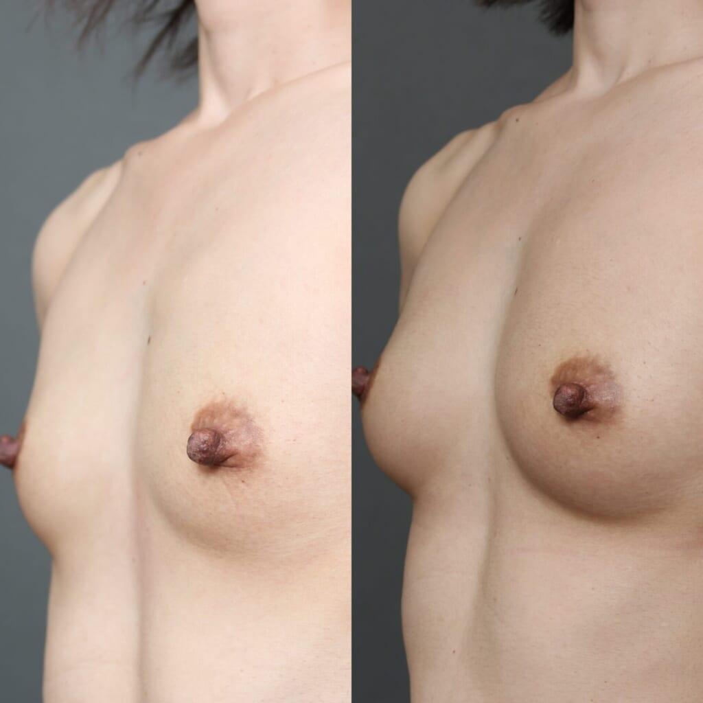 コンデンスリッチ豊胸 術後術後2ヶ月